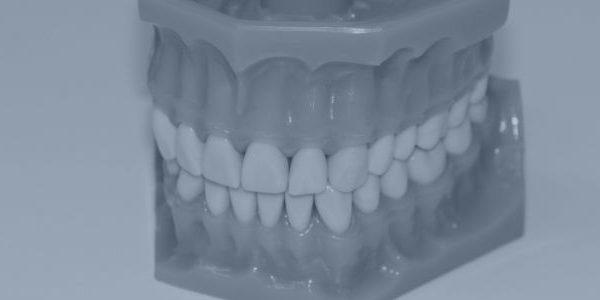 Skærer du tænder ?