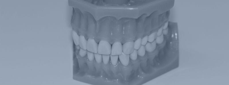 Skærer tænder