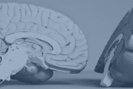 De 4 hovedpinetyper