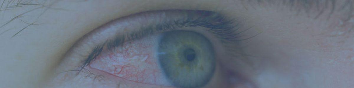 Øjenmigræne