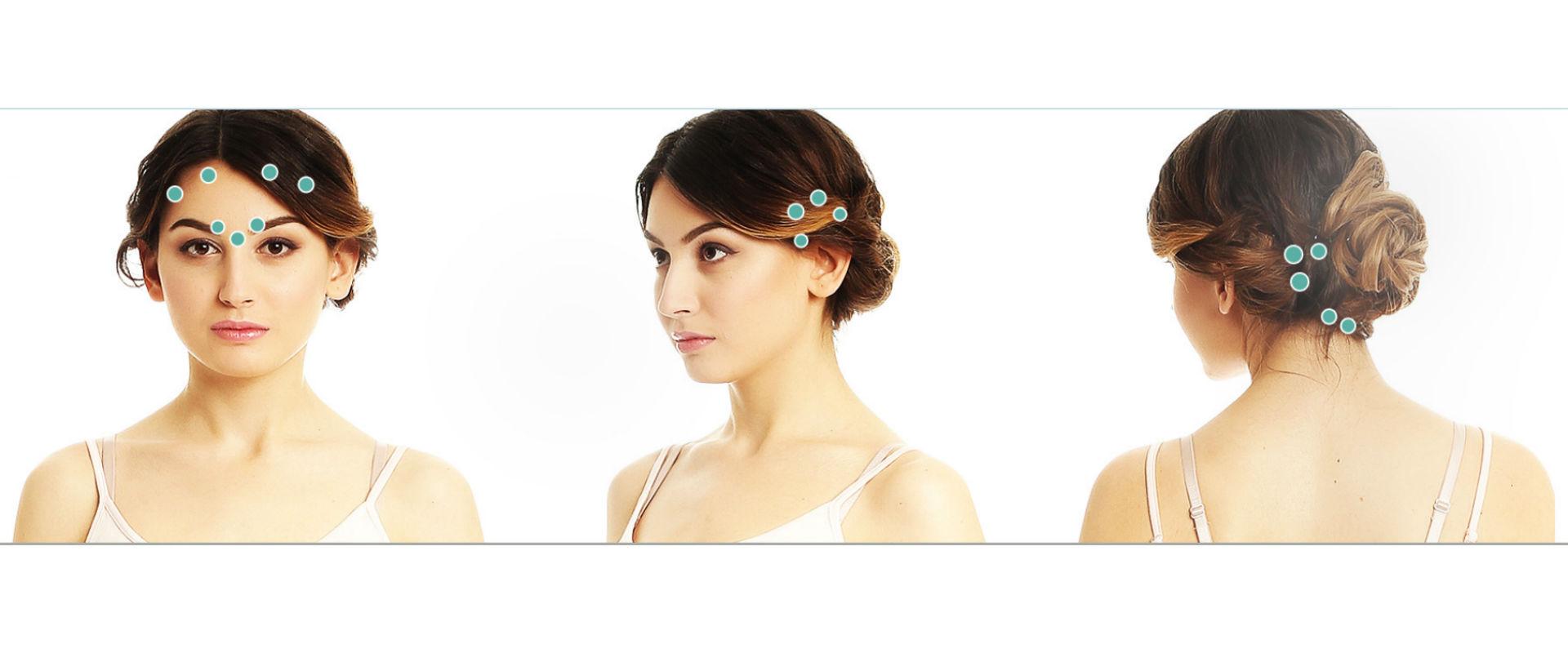 Botox mod migræne og hovedpine behandlingen består ved behandling af 31 veldefinerede punkter i ansigtet, hovedet og nakken.