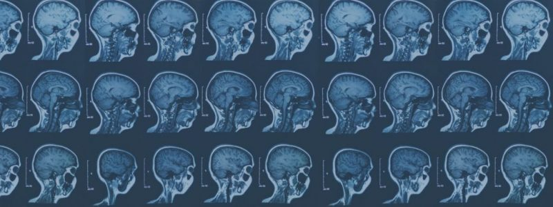 Hjernerystelse