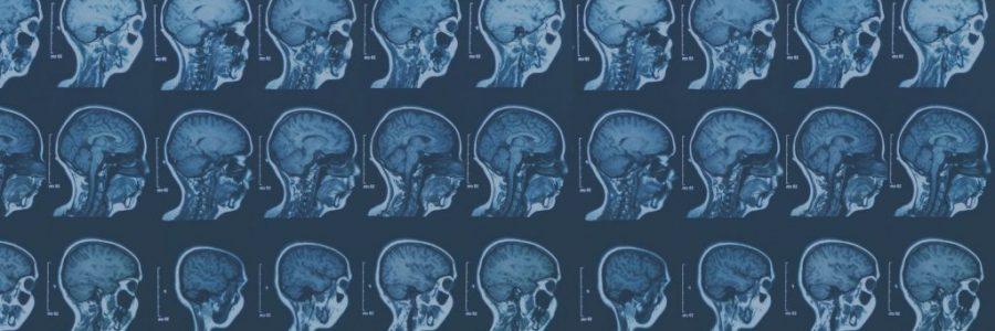Hovedpine efter hjernerystelse