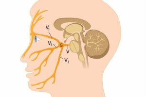 Trigeminus Neuralgi