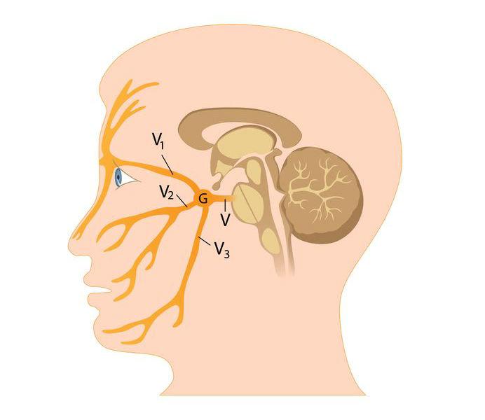 De tre nervegrene med trigeminusneuralgi