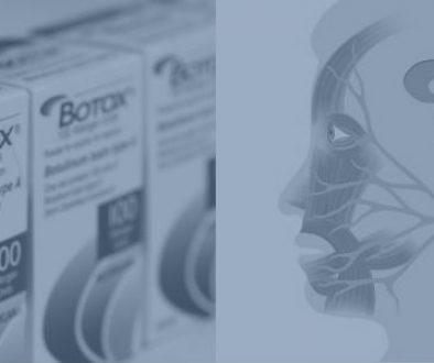 Botox mod trigeminusneuralgi