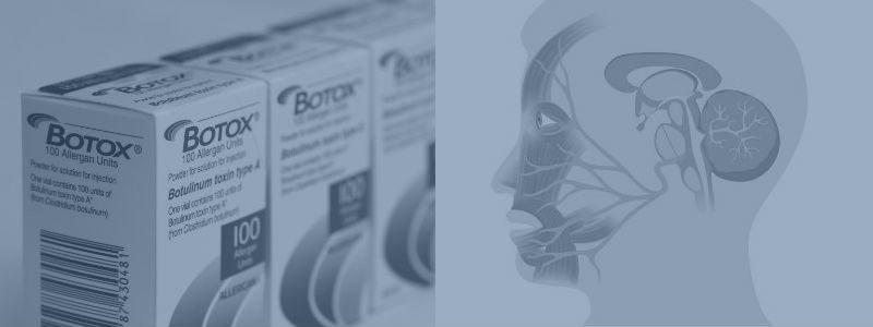 Ny behandling – Botox mod trigeminus-neuralgi